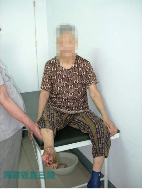 85岁老人坏疽